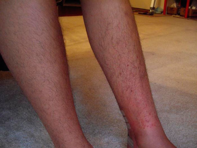 Сыпь на ногах может причины, фото, описания, лечение