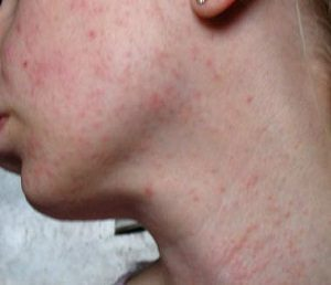 Сыпь на лице у взрослого и ребенка – причины, фото, лечение