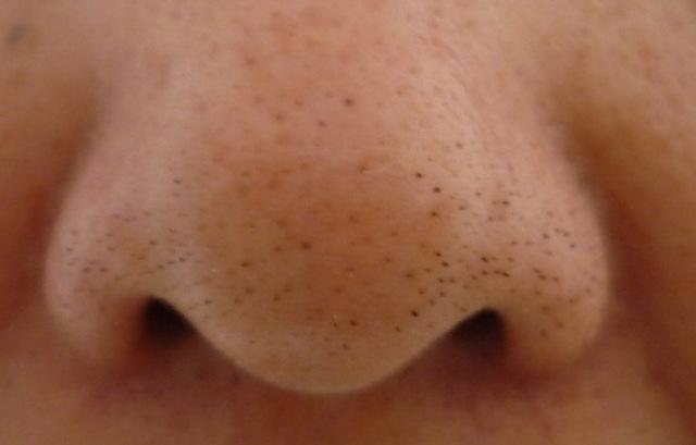 Как удалить черные точки на носу – домашние и народные средства