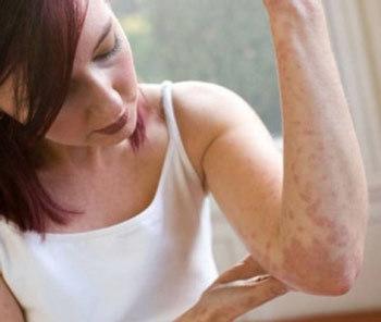 Красные пятна на коже – причины, фото и как избавиться