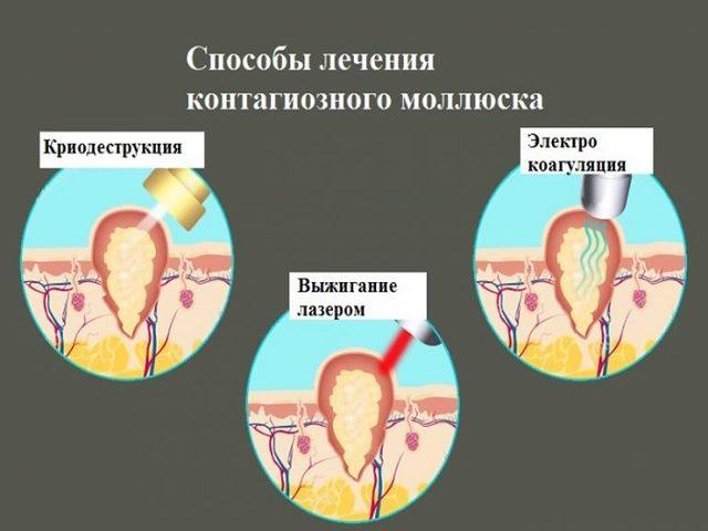 Покраснело веко – причины, лечение