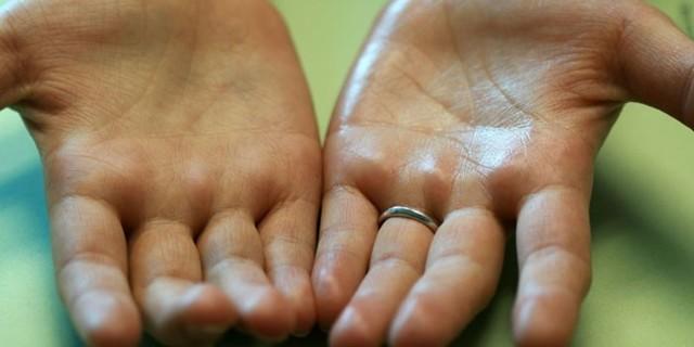 Потеют ладони – причины и что делать