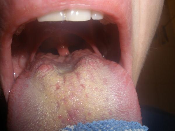 Пузырьки на языке (белые, красные, кровяные) – причины и лечение