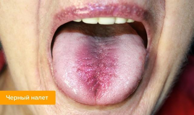 Оранжевый налет на языке – фото, причины и лечение