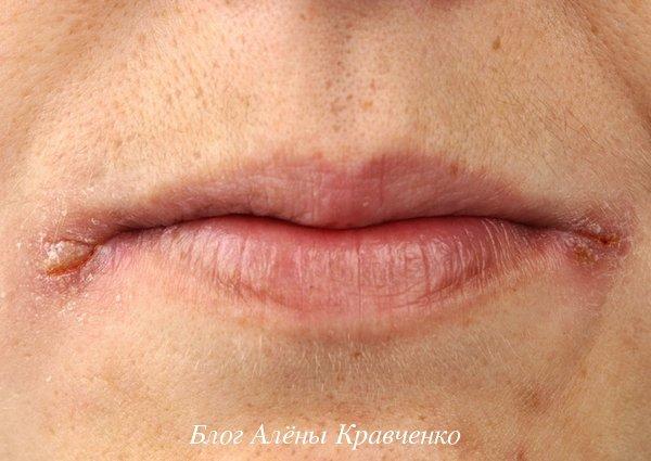 Красные или белые болячки на губах – причины, фото, лечение