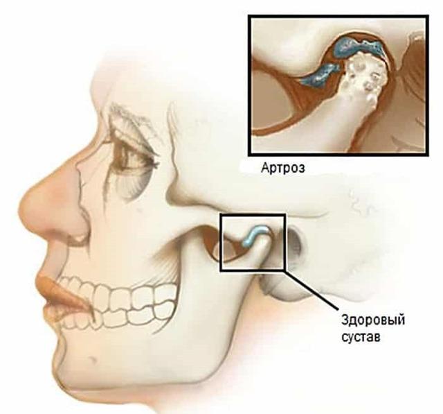 Хрустит, щелкает челюсть при открытии рта или жевании – причины