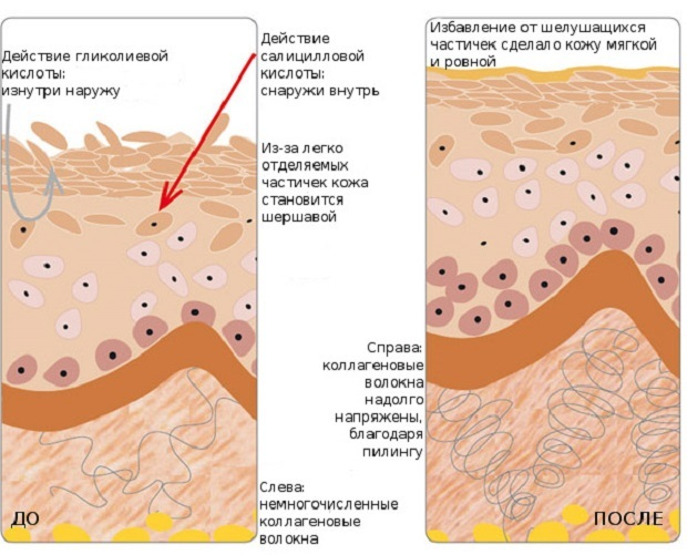 Темная кожа на внутренней стороне бедра – причины и как отбелить