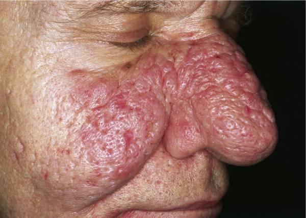 Пятна в области носа – фото, причины, лечение