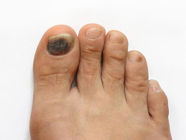Темные пятна или точки на ногтях – причины, фото, лечение