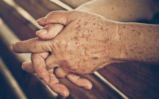 Темные пятна на руках – причины, фото и как избавиться