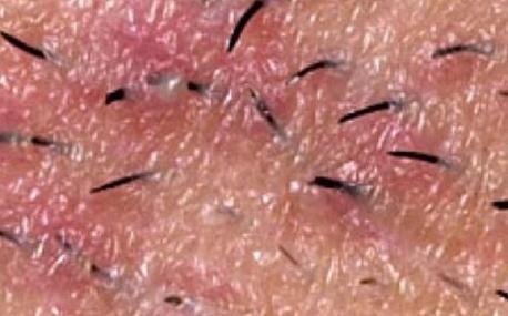 Вросшие волосы на лобке и вокруг гениталий – как избавиться?