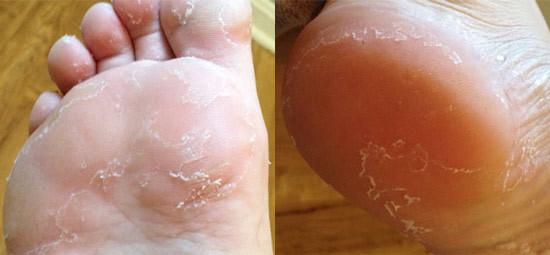 Шелушится, облазит кожа ног – причины, фото, лечение