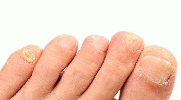 Треснул ноготь на ноге – причины, лечение, домашние средства