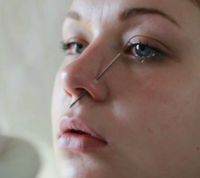 Заражение пирсинга на носу – фото, симптомы и лечение