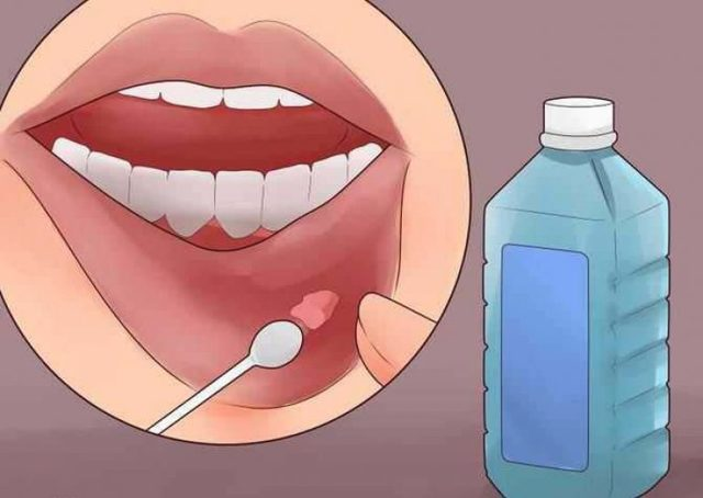 Слизистая киста на губе – симптомы, причины, лечение