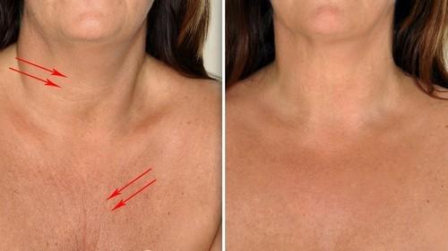 Морщины на груди – причины и как избавиться