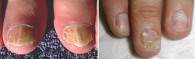 Хрупкие, ломкие ногти – причины, лечение, домашние средства