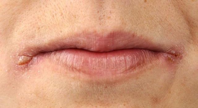 Грибок на губах у взрослого и ребенка – причины, фото, лечение