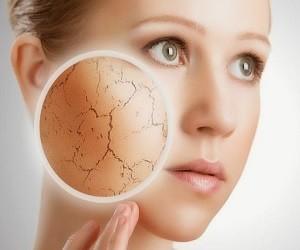Сухая кожа тела – причины и домашние средства