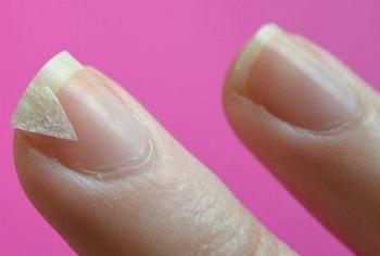 Трескаются ногти – почему и что делать? Домашние средтва