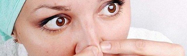 Как почистить и уменьшить поры на носу?