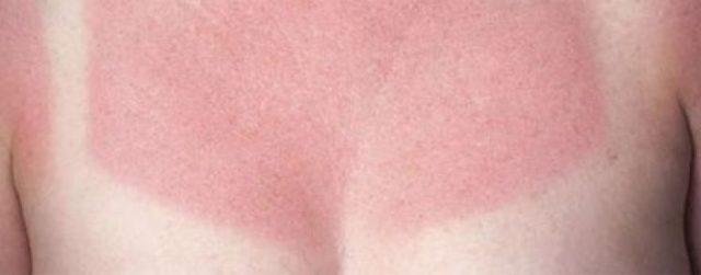 Губы обгорели на солнце – лечение, облегчение симптомов и фото
