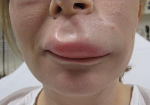 Отек губ и его причины – аллергия, травмы, язвы и болезни. Фото