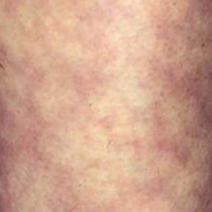 Мраморная кожа – причины, виды фото, лечение