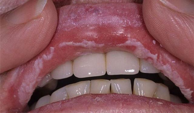 Белые пятна на губах – виды, причины, лечение