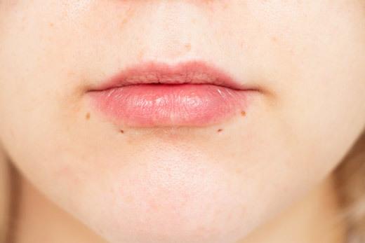 Пирсинг щек – виды, как делается, риски, фото, шрамы, уход