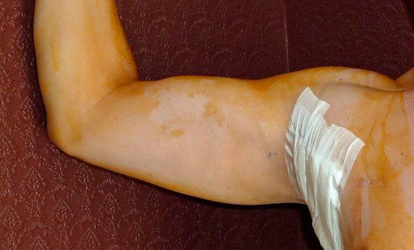 Киста под мышкой – фото, причины, лечение
