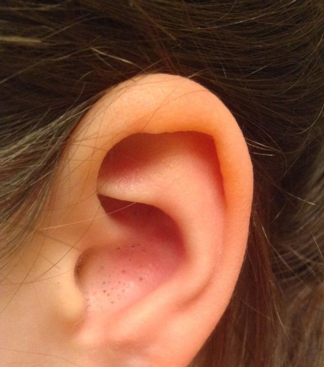 Черные угри в ушах – фото, причины, как избавиться