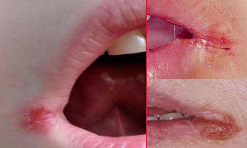Трещины на губах – причины и лучшие народные средства