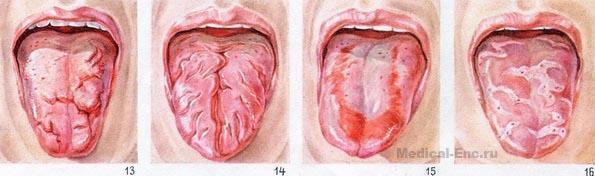 Облазит язык – причины, лечение