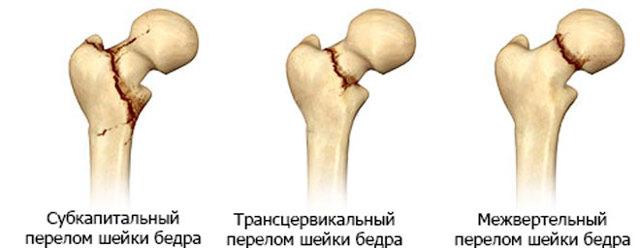 Боль на внутренней стороне бедра – причины и лечение