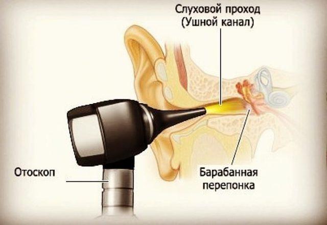 Киста за ухом или на мочке – фото, причины, лечение