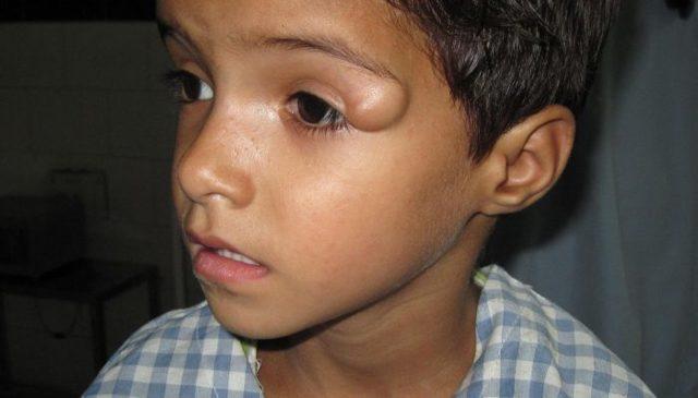Киста на лице – фото, виды, причины, лечение