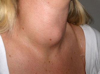 Шишка на затылке, шее или за ухом – фото, причины, лечение