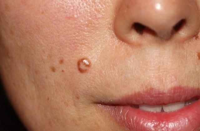 Плоские бородавки на лице: фото, причины, лечение
