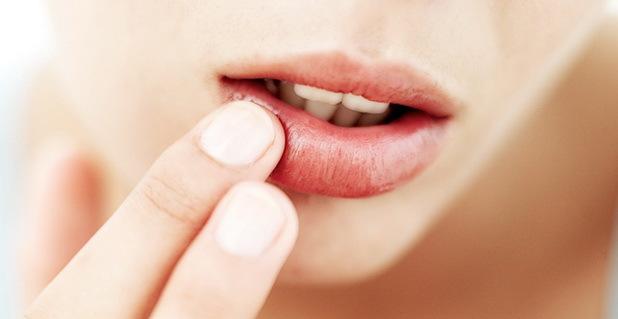 Прыщи на губах и вокруг них – причины, лечение