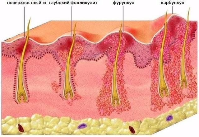 Фурункул на груди и под ней – причины, лечение, домашние средства
