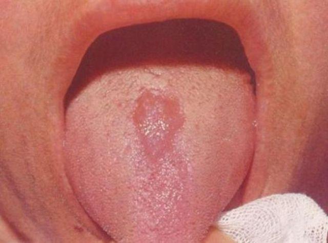 Трещины и складки на языке – причины, симптомы и лечение