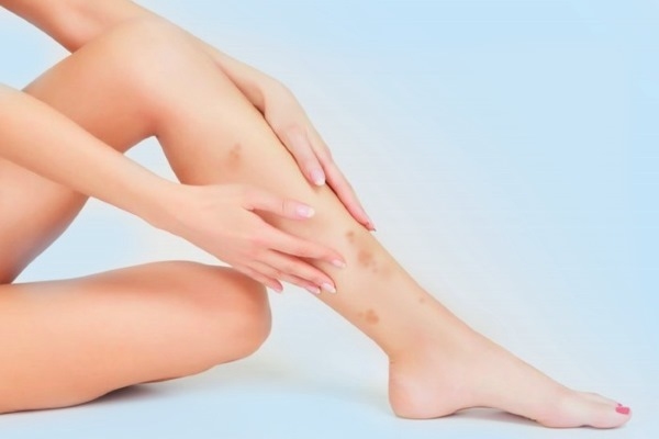 Темные пятна или точки на ногах – причины, фото и как избавиться