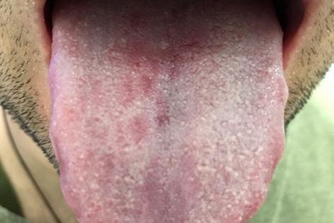 Фиолетовый язык у человека или под ним – фото, причины, лечение