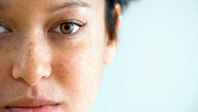 Темные пятна на лице – причины и как избавиться