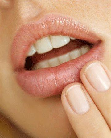 Как избавиться от белых пятен Фордайса на губах?