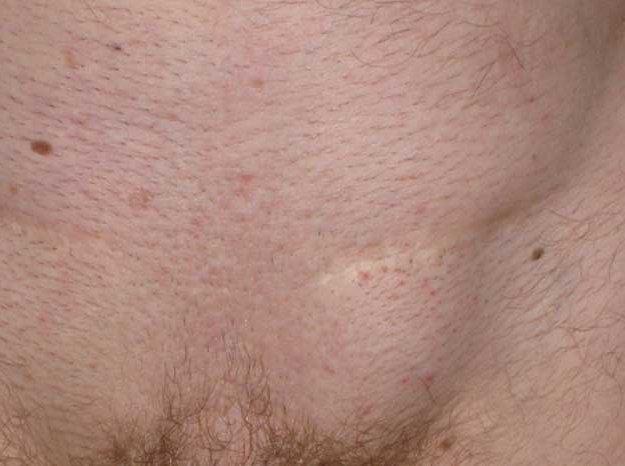 Появился прыщ или шишка на лобке – причины, фото, лечение