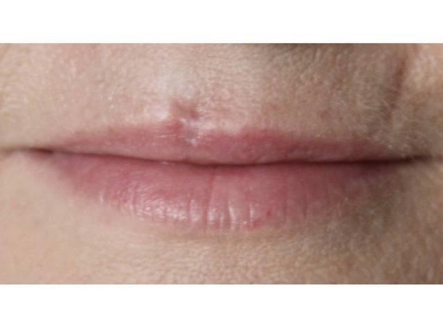 Шрам от пирсинга губы: фото и как избавиться?
