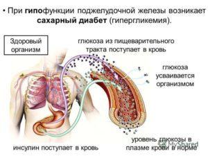 Поджелудочная железа при диабете сахарном 2 типа: лечение, восстановление, пересадки, работа, УЗИ, массаж, препараты, боли, воспаление