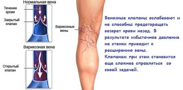 Внутренний (скрытый) варикоз: симптомы, лечение (народные способы, медикаменты, хирургия)